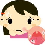 口内炎の治し方は?即効で出来る方法は?でも舌先に出来ると注意!!